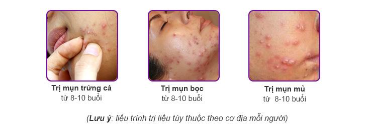 Liệu trình điều trị mụn tại Dr Hoàng Tuấn