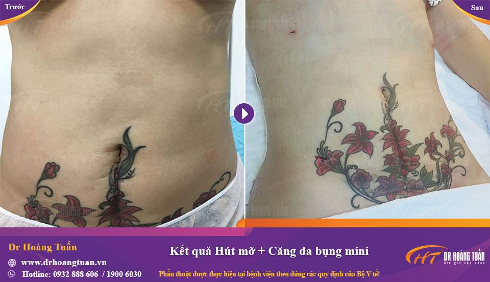 Hút mỡ và căng da bụng mini tại Dr Hoàng Tuấn