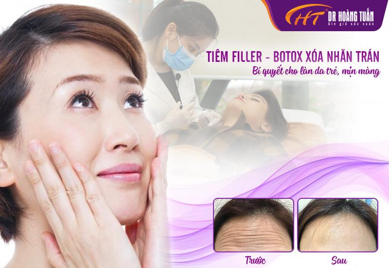 Xóa nhăn trán bằng Filler và Botox tại Dr Hoàng Tuấn