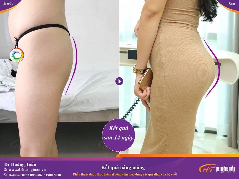 Kết quả nâng mông an toàn tại Dr Hoàng Tuấn