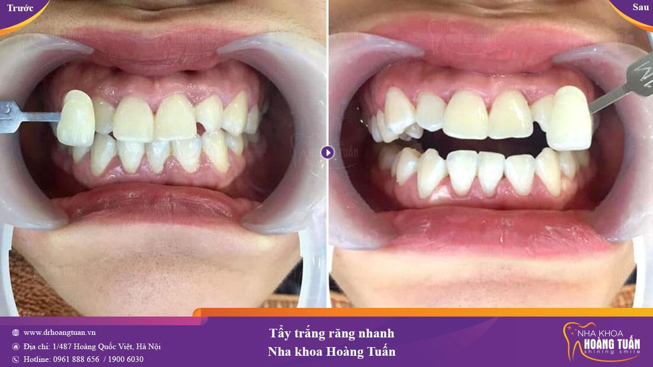 Kết quả Tẩy trắng răng bằng laser Whitening tại Dr Hoàng Tuấn