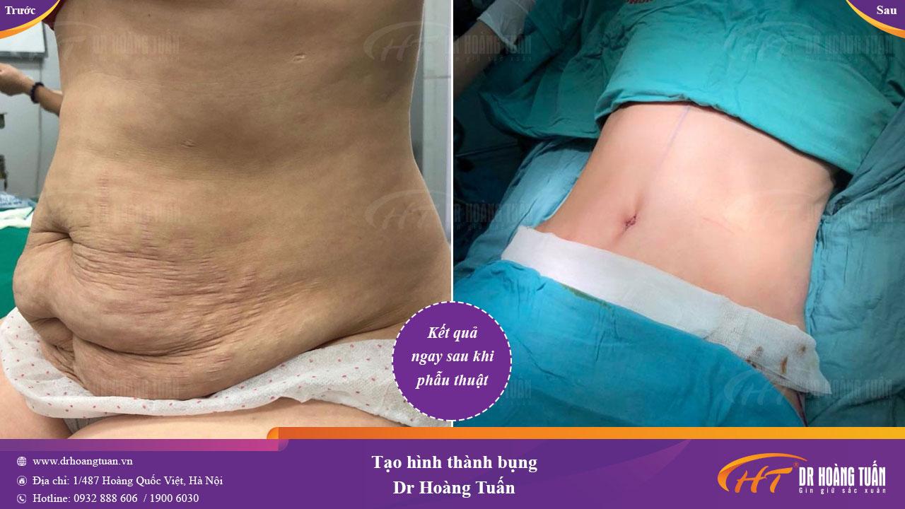 Kết quả tạo hình thành bụng an toàn tại Dr Hoàng Tuấn