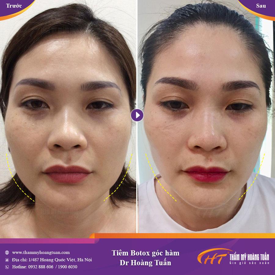 kết quả Tiêm gọn góc hàm bằng Botox tại dr hoàng tuấn