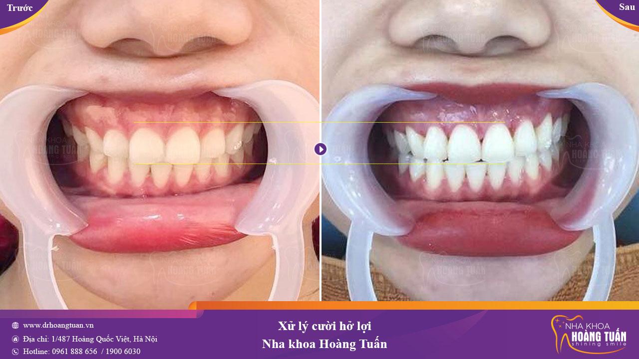 Kết quả xử lý cười hở lợi tại Nha khoa Hoàng Tuấn