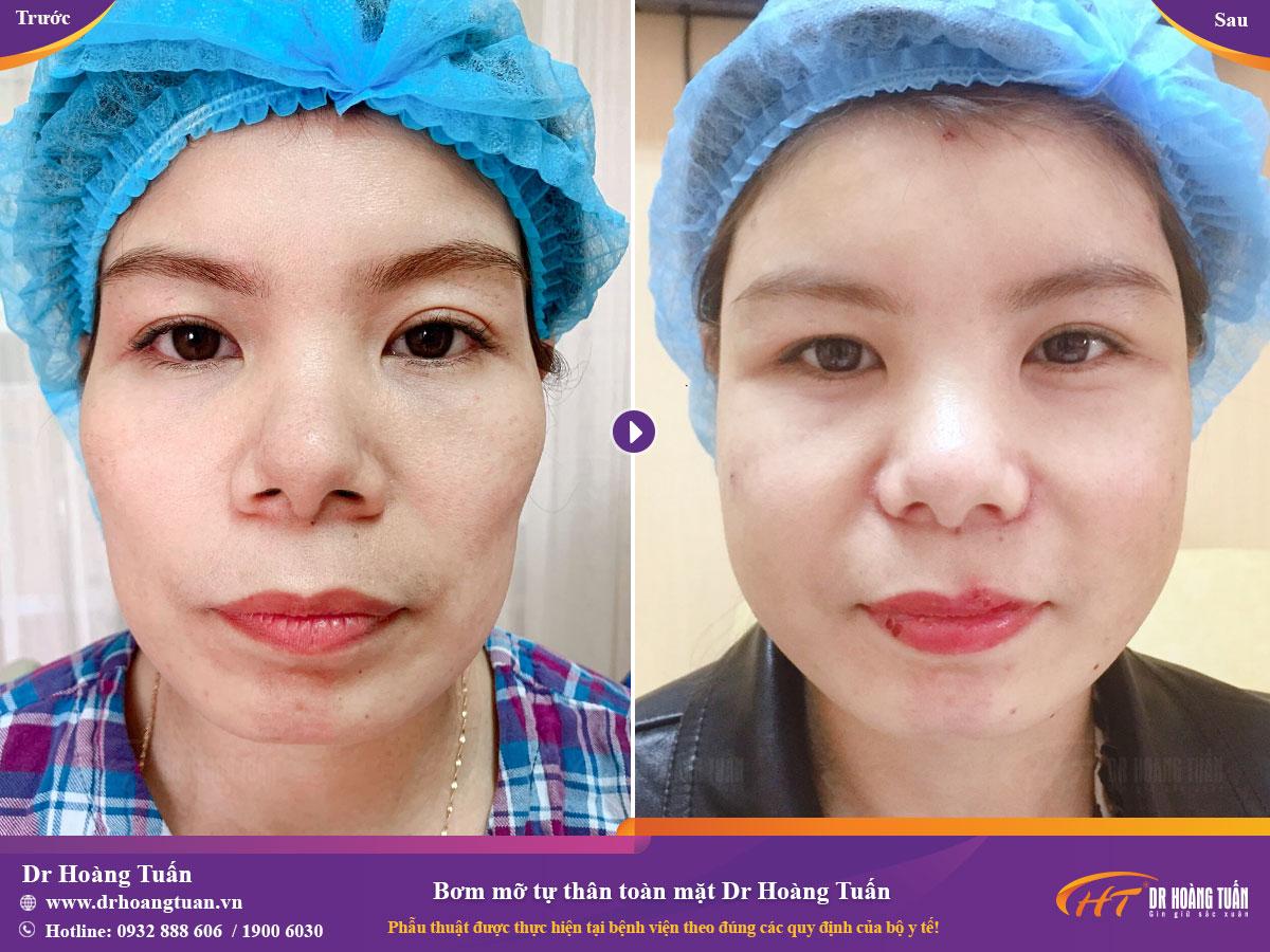 Kết quả bơm mỡ mặt tự thân tại Dr Hoàng Tuấn