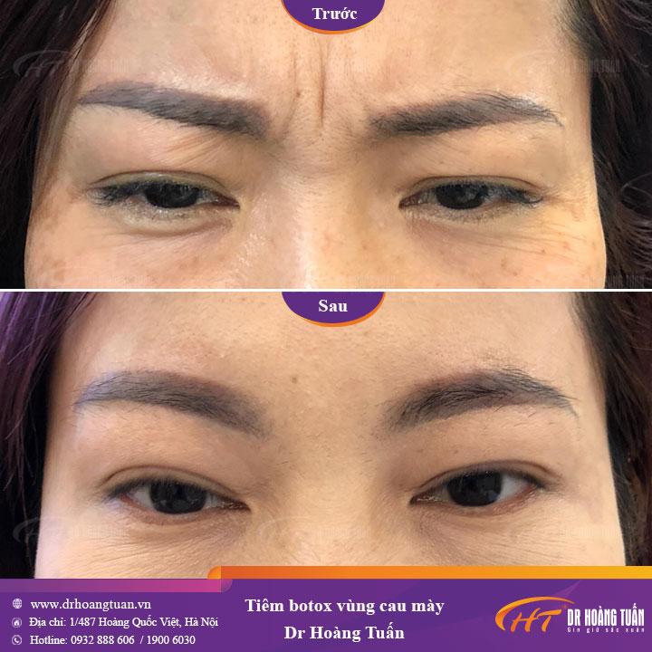 Kết quả xóa nhăn trán bằng Filler và Botox tại Dr Hoàng Tuấn
