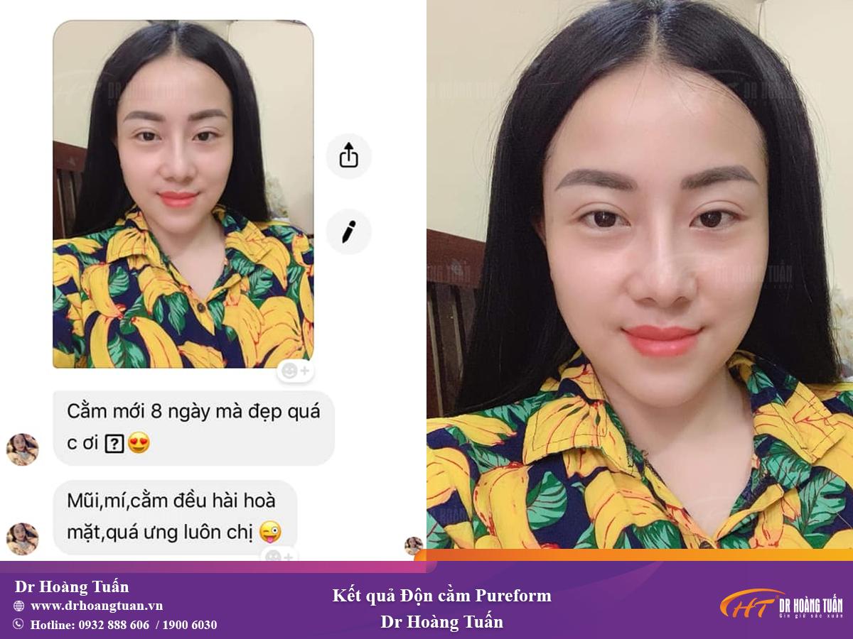Kết quả độn cằm V-line ở Dr Hoàng Tuấn