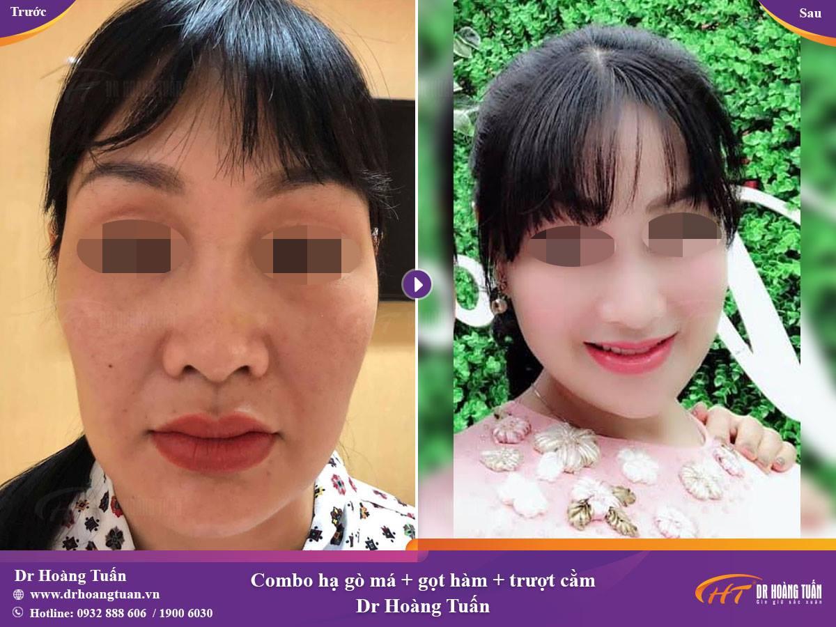Kết quả trượt cằm tại Dr Hoàng Tuấn
