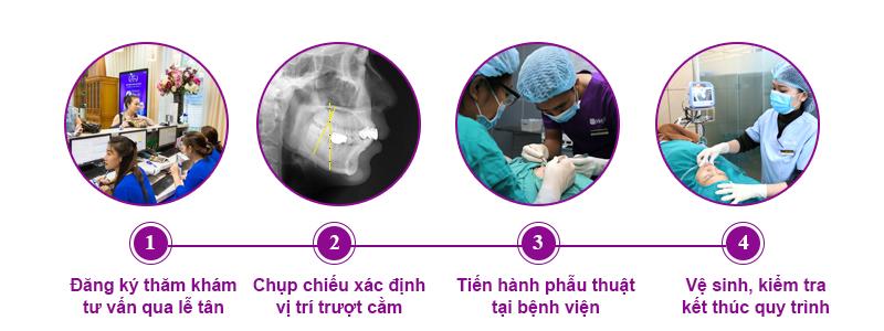 Quy trình trượt cằm tại dr hoàng tuấn