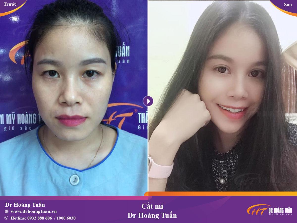 Kết quả cắt mí mắt đẹp tại Dr Hoàng Tuấn