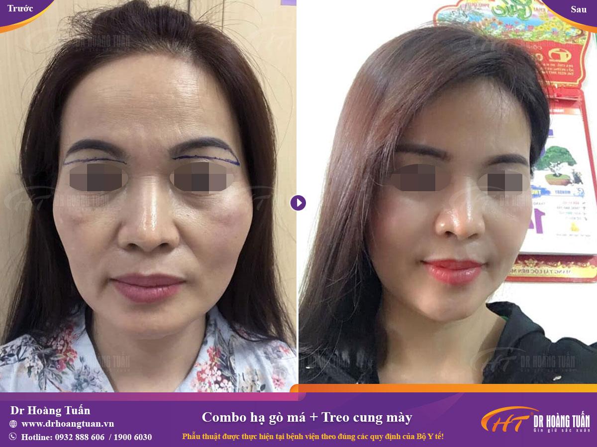Kết quả hạ gò má tại Dr Hoàng Tuấn