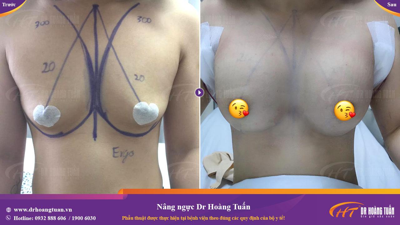 kết quả nâng ngực nội soi thành công tại Dr Hoàng Tuấn